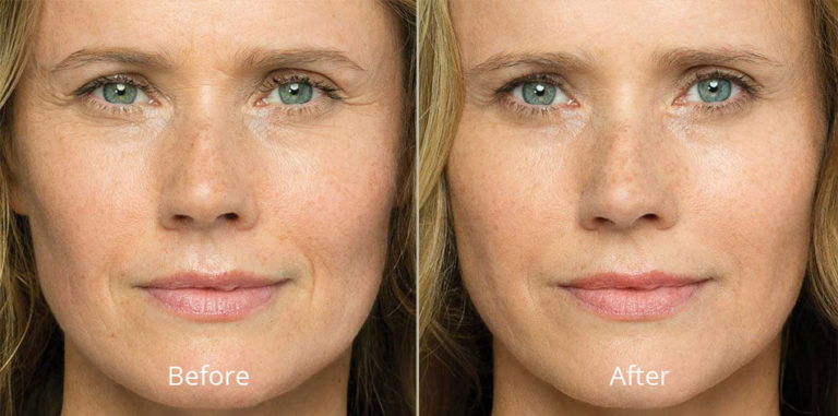 belotero-balance-before-after-madison-connecticut-aria-dermspa-dermatology-aesthetic-center-full-1