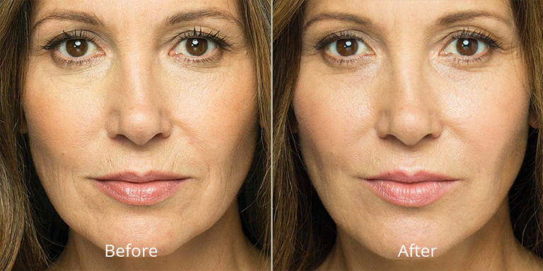 belotero-balance-before-after-madison-connecticut-aria-dermspa-dermatology-aesthetic-center-full-2