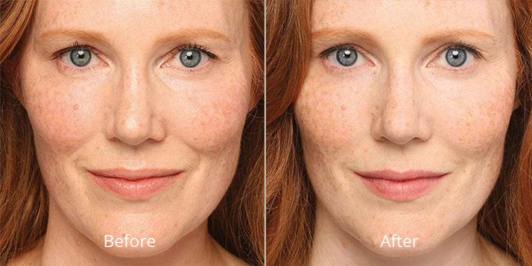 belotero-balance-before-after-madison-connecticut-aria-dermspa-dermatology-aesthetic-center-full-3
