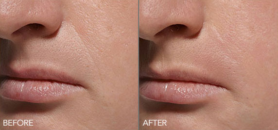 belotero-balance-before-after-madison-connecticut-aria-dermspa-dermatology-aesthetic-center-full-4