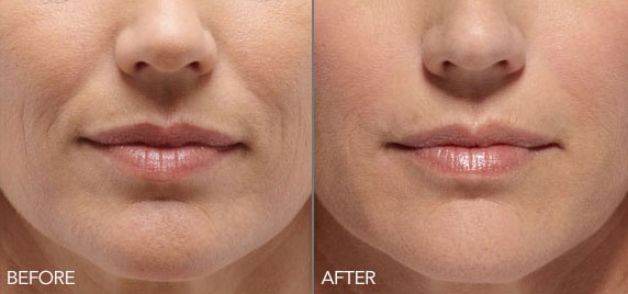 belotero-balance-before-after-madison-connecticut-aria-dermspa-dermatology-aesthetic-center-full-6