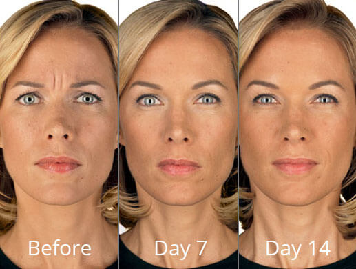 botox-before-after-madison-connecticut-aria-dermspa-dermatology-aesthetic-center-full-1