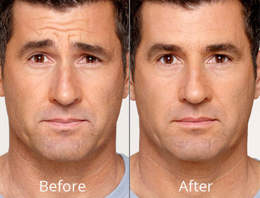 botox-before-after-madison-connecticut-aria-dermspa-dermatology-aesthetic-center-full-2