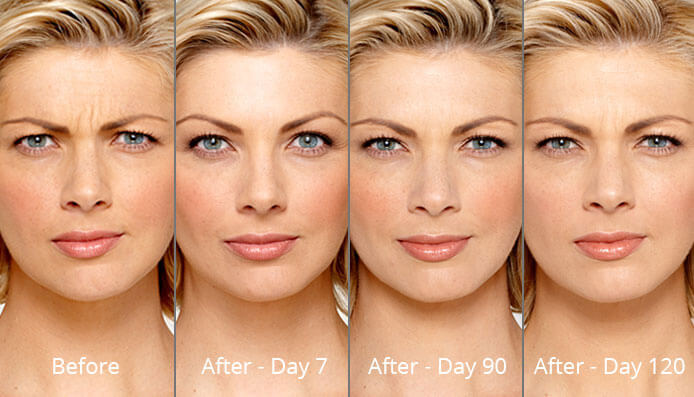 botox-before-after-madison-connecticut-aria-dermspa-dermatology-aesthetic-center-full-3