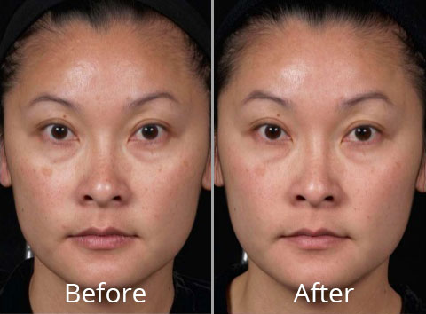 clear-brilliant-before-after-madison-connecticut-aria-dermspa-dermatology-aesthetic-center-full-1