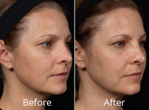clear-brilliant-before-after-madison-connecticut-aria-dermspa-dermatology-aesthetic-center-full-2