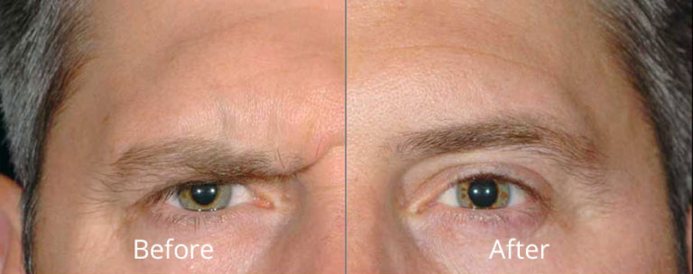 dysport-before-after-madison-connecticut-aria-dermspa-dermatology-aesthetic-center-full-1