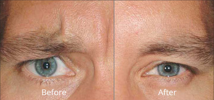 dysport-before-after-madison-connecticut-aria-dermspa-dermatology-aesthetic-center-full-2