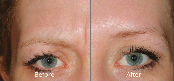 dysport-before-after-madison-connecticut-aria-dermspa-dermatology-aesthetic-center-full-3