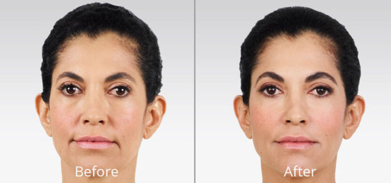 juvederm-before-after-madison-connecticut-aria-dermspa-dermatology-aesthetic-center-full-1