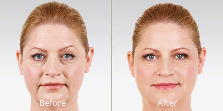 juvederm-before-after-madison-connecticut-aria-dermspa-dermatology-aesthetic-center-full-2