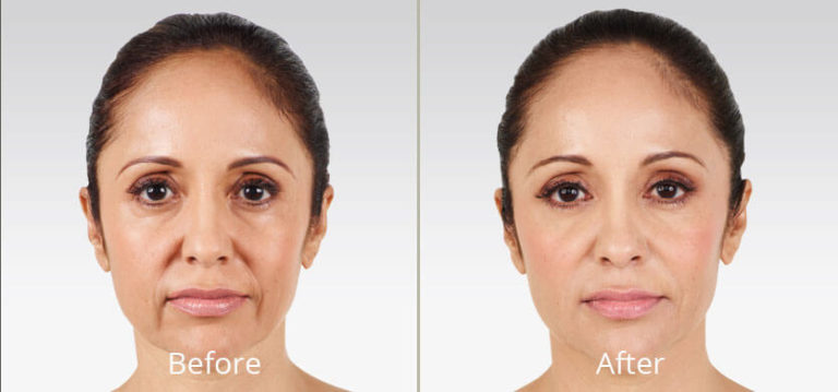 juvederm-before-after-madison-connecticut-aria-dermspa-dermatology-aesthetic-center-full-3