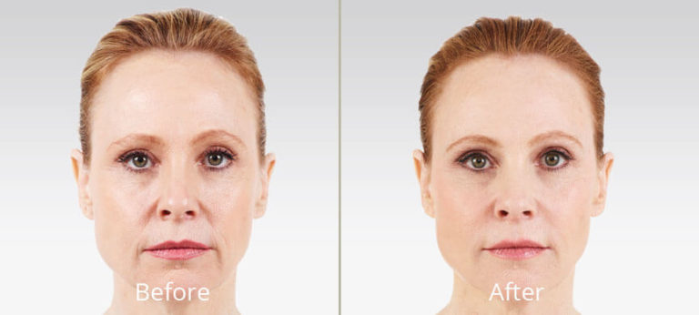juvederm-before-after-madison-connecticut-aria-dermspa-dermatology-aesthetic-center-full-4