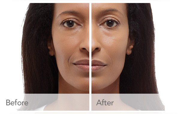 radiesse-before-after-madison-connecticut-aria-dermspa-dermatology-aesthetic-center-full-1