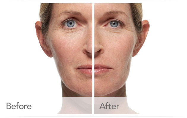 radiesse-before-after-madison-connecticut-aria-dermspa-dermatology-aesthetic-center-full-2