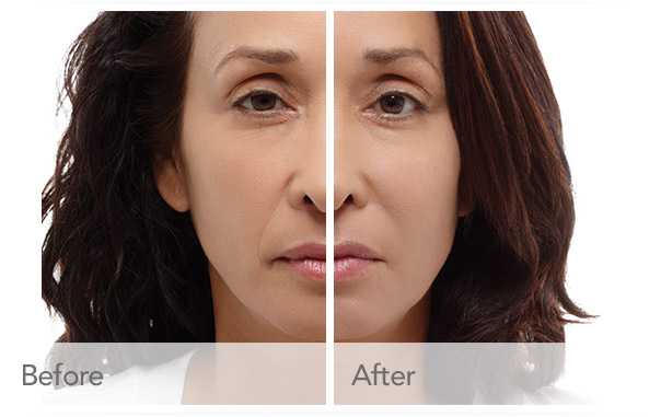 radiesse-before-after-madison-connecticut-aria-dermspa-dermatology-aesthetic-center-full-3