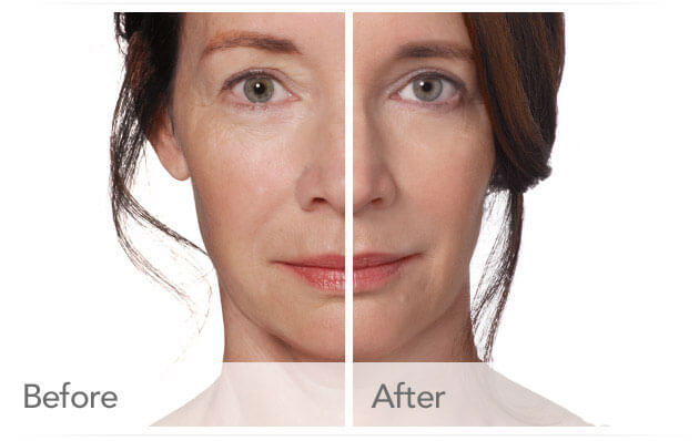 radiesse-before-after-madison-connecticut-aria-dermspa-dermatology-aesthetic-center-full-4