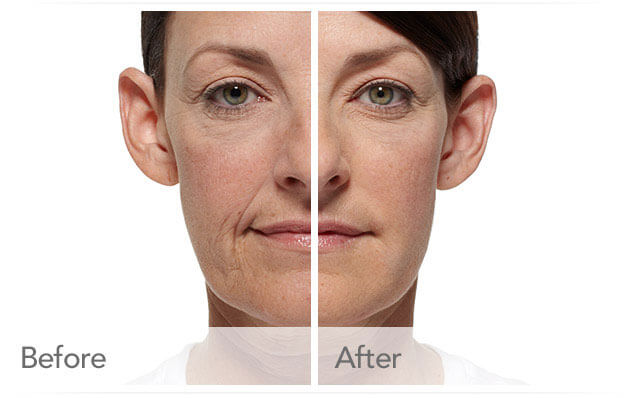 radiesse-before-after-madison-connecticut-aria-dermspa-dermatology-aesthetic-center-full-5