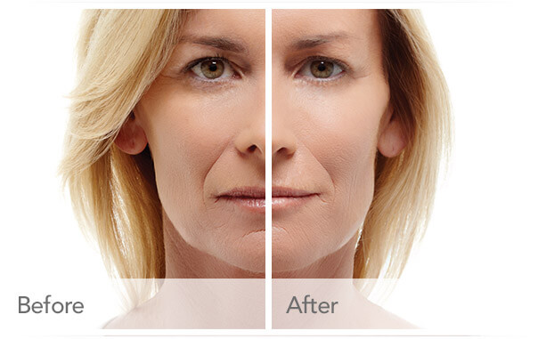 radiesse-before-after-madison-connecticut-aria-dermspa-dermatology-aesthetic-center-full-6