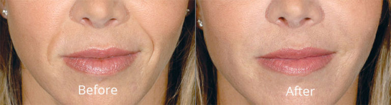 restylane-before-after-madison-connecticut-aria-dermspa-dermatology-aesthetic-center-full-1