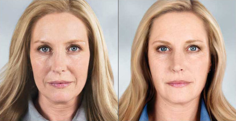 sculptra-before-after-madison-connecticut-aria-dermspa-dermatology-aesthetic-center-full-1
