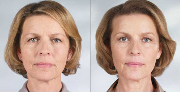 sculptra-before-after-madison-connecticut-aria-dermspa-dermatology-aesthetic-center-full-3