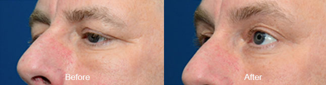thermismooth-before-after-madison-connecticut-aria-dermspa-dermatology-aesthetic-center-full-1