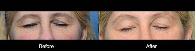 thermismooth-before-after-madison-connecticut-aria-dermspa-dermatology-aesthetic-center-full-2