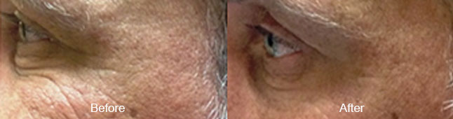 thermismooth-before-after-madison-connecticut-aria-dermspa-dermatology-aesthetic-center-full-4