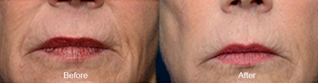 thermismooth-before-after-madison-connecticut-aria-dermspa-dermatology-aesthetic-center-full-5