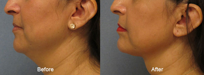 thermitight-before-after-madison-connecticut-aria-dermspa-dermatology-aesthetic-center-full-3