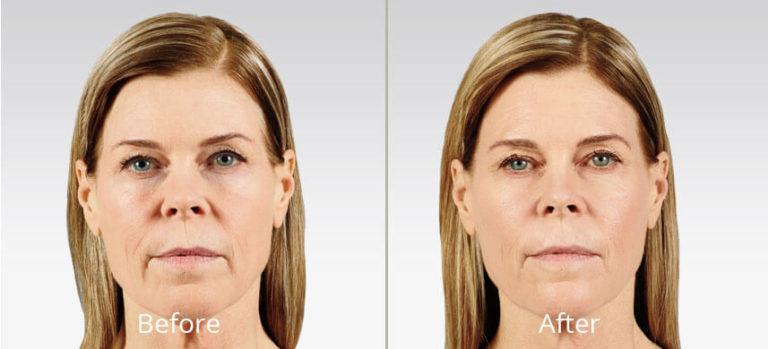 Facial rejuvenation connecticut
