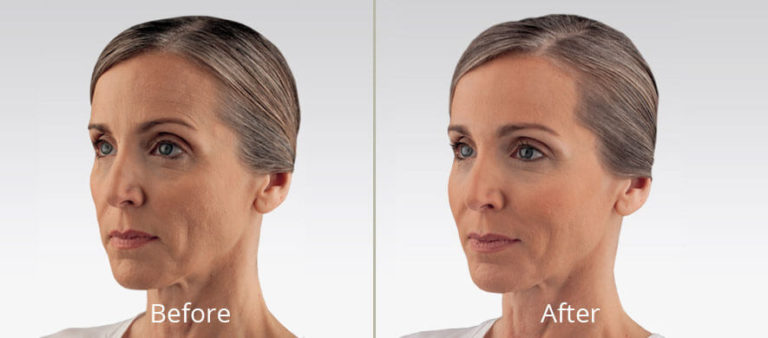 voluma-ultra-before-after-madison-connecticut-aria-dermspa-dermatology-aesthetic-center-full-2