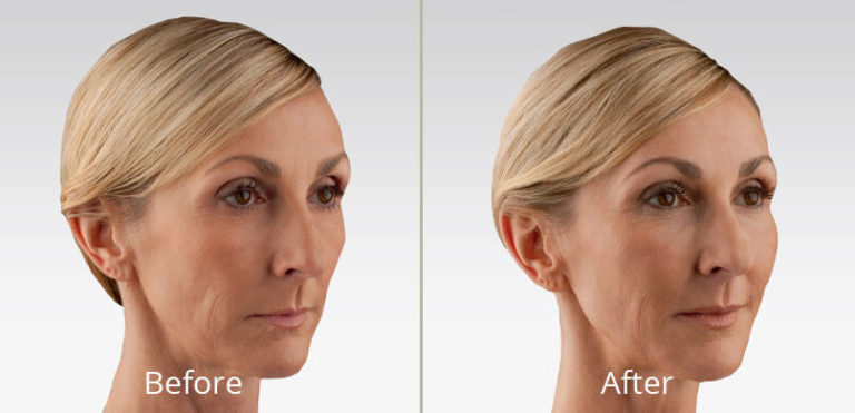 voluma-ultra-before-after-madison-connecticut-aria-dermspa-dermatology-aesthetic-center-full-4