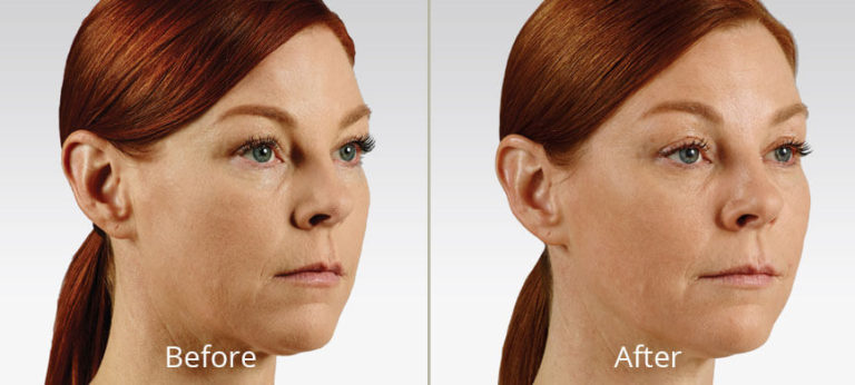 voluma-ultra-before-after-madison-connecticut-aria-dermspa-dermatology-aesthetic-center-full-5